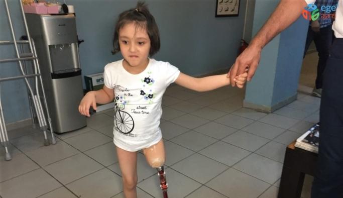 (Özel) Minik Özge'nin protez bacak mutluluğu